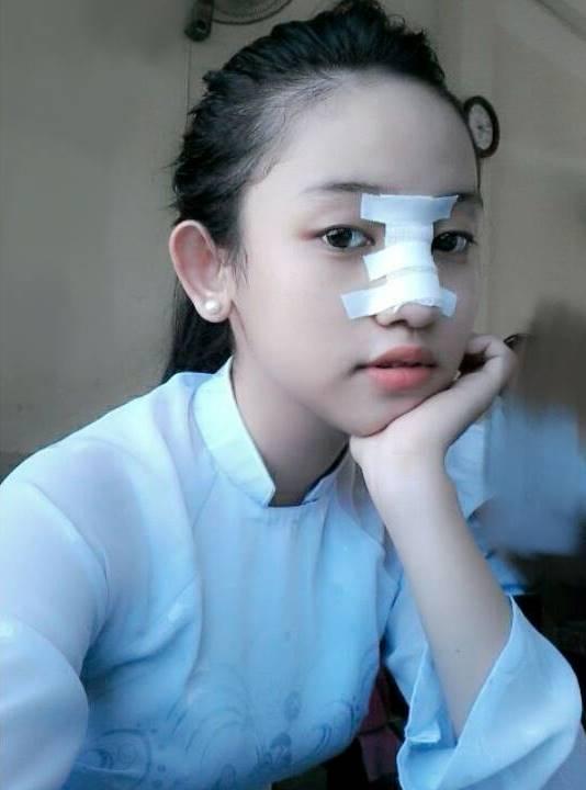 Nu sinh vu Midu - Phan Thanh: Ba me cho tien sua mui 2 lan hinh anh 1 Thúy Vi công khai hình ảnh nâng mũi trên trang cá nhân.
