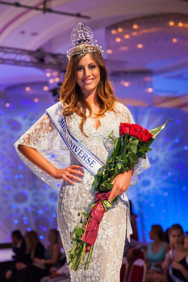 Hoa hau Croatia mat co hoi thi Miss Universe vi gay tay hinh anh 1