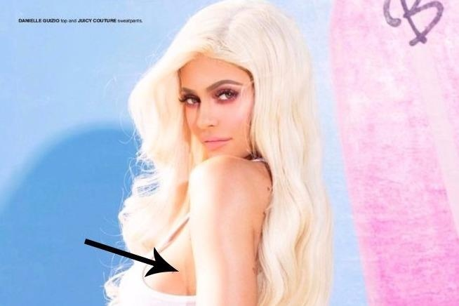 Hot girl Kylie Jenner thua nhan phau thuat tham my? hinh anh