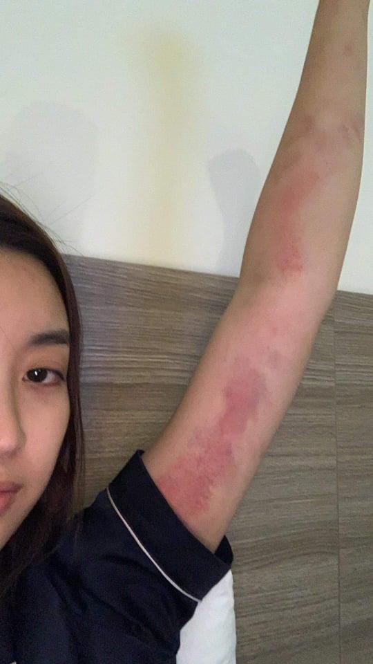 Hoa hậu Mỹ Linh bị trầy khắp người sau Cuộc đua kỳ thú