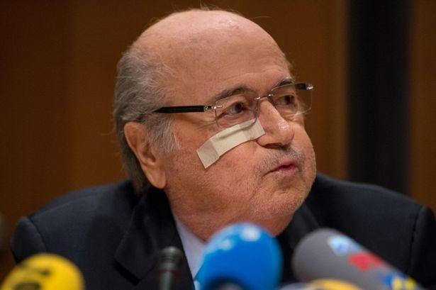 Sepp Blatter: 'Toi chi la nan nhan' hinh anh 7