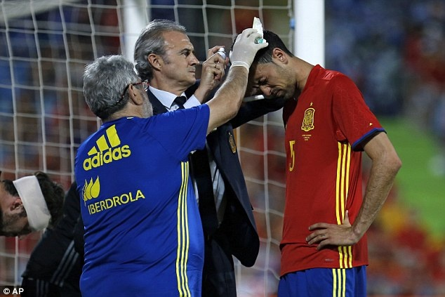 Nha vo dich Tay Ban Nha thua doi thu kem 131 bac truoc Euro hinh anh 7