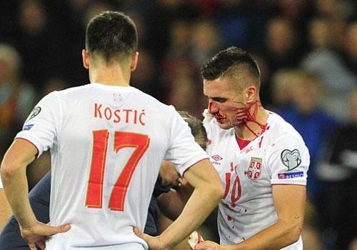 Tuyen thu Serbia chap nhan vo mui, gay chan vi World Cup hinh anh