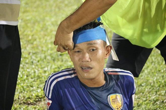 CLB Thanh Hoa thua doi Quang Ninh 3-4 vi hang phong ngu mac sai lam hinh anh 8