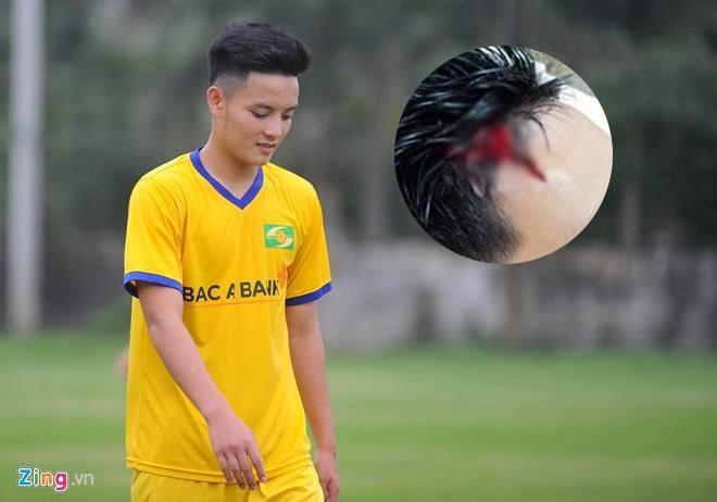 CLB Hai Phong vs CLB Quang Ninh anh 12