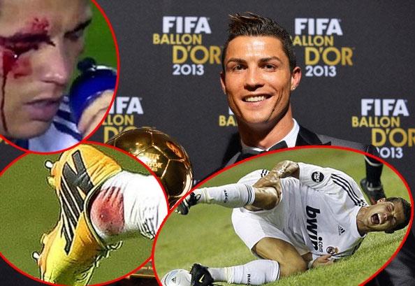 Ronaldo kho luyen, vuot qua chan thuong gianh Qua bong vang hinh anh