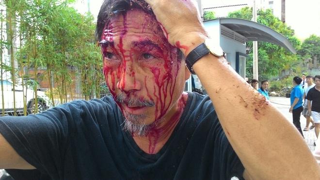 Con do pha cong chung cu, danh dan chay mau dau hinh anh 3 Ông Tú bị côn đồ đánh chảy máu đầu. Ảnh: Ban quản trị chung cư cung cấp.