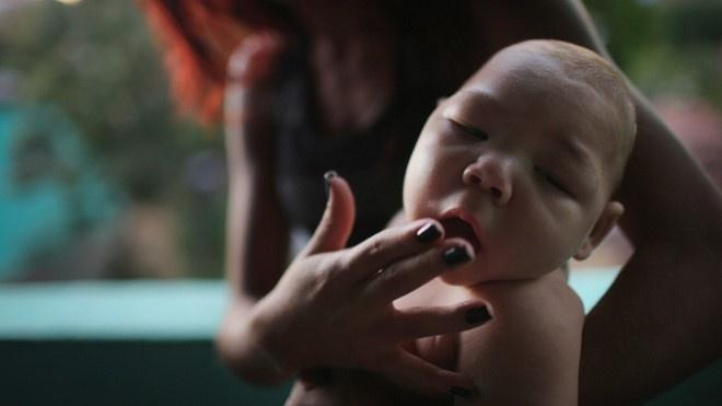 Bo Y te lam viec tai Binh Thuan ve phong dich virus Zika hinh anh