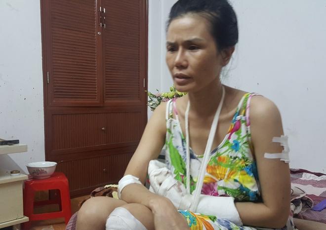 Thanh nien 'ngao da' chem chu nha gan dut ban tay hinh anh 1