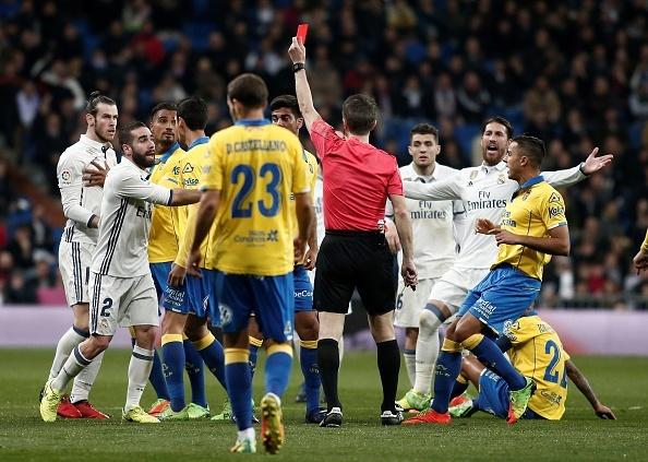 Bale va Navas nhan loi sau tran hoa cua Real anh 1