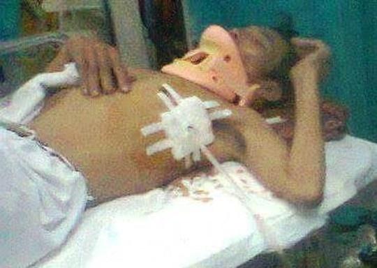 Mot nguoi dan bi pho cong an xa danh gay 4 xuong suon hinh anh 1 Ông Vũ Văn Điều bị đánh gãy xương sườn lúc đang cấp cứu tại Bệnh viện Việt Đức