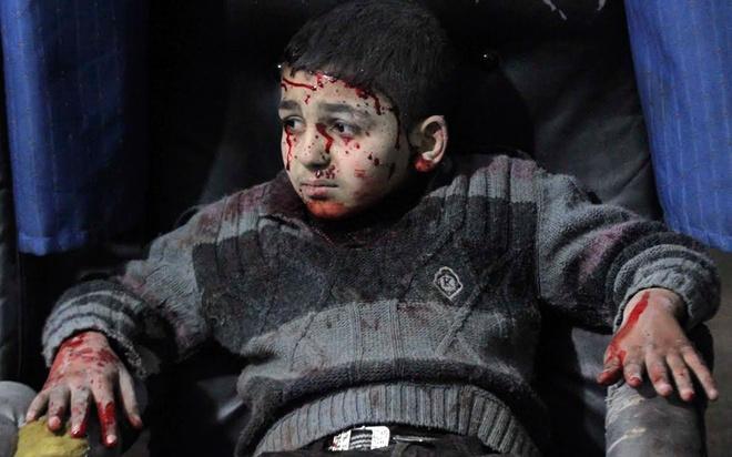Một bé trai bị thương sau cuộc không kích của quân đội Syrai do Tổng thống Bashar al-Assad phát động tại Duma, phía đông bắc thủ đô Damascus.