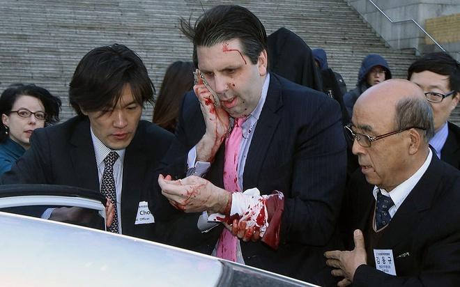 Loat anh an tuong nhat tuan (2 - 7/3) hinh anh 1 Đại sứ Mỹ tại Hàn Quốc Mark Lippert dùng tay ôm mặt dính máu sau khi bị một kẻ lạ mặt tấn công bằng dao cạo