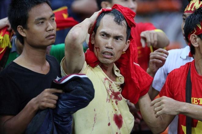 CDV Viet Nam van am anh dau thuong ve su co o Malaysia 2014 hinh anh
