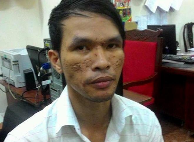 Ke hanh ha be trai Campuchia bang roi dien duoc tai ngoai hinh anh