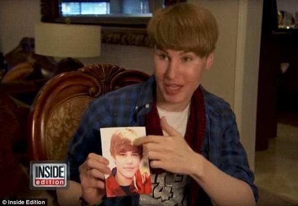 Cong bo nguyen nhan 'ban sao Justin Bieber' qua doi hinh anh 1