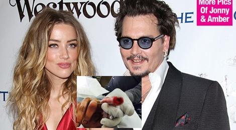 Johnny Depp tu cat dut dau ngon tay khi nghi vo ngoai tinh hinh anh