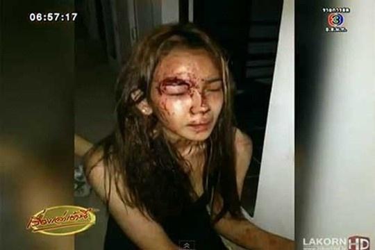 Sao nu Thai Lan tram cam sau khi suyt bi tho xay cuong buc hinh anh 2