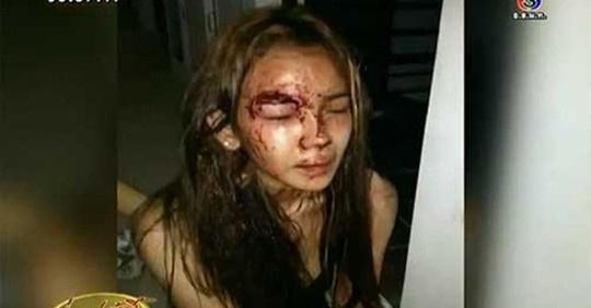 Sao nu Thai Lan tram cam sau khi suyt bi tho xay cuong buc hinh anh