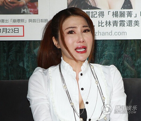 Giai nhan Trung Quoc mat bien dang khi tiem botox qua da hinh anh 1