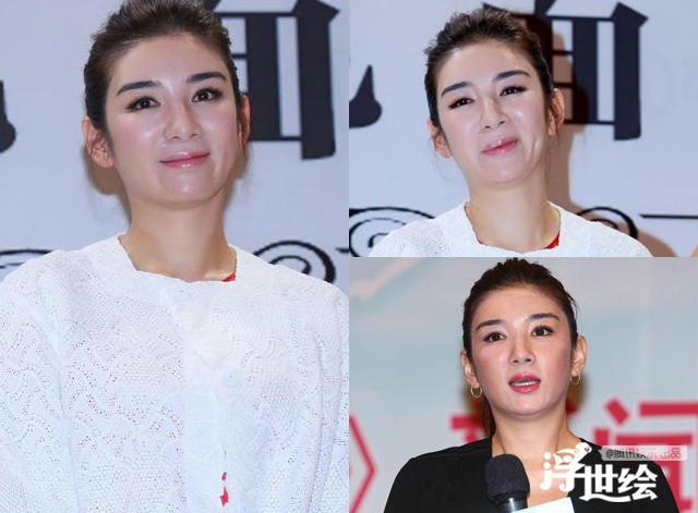 Giai nhan Trung Quoc mat bien dang khi tiem botox qua da hinh anh 3