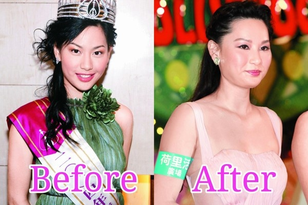 Giai nhan Trung Quoc mat bien dang khi tiem botox qua da hinh anh 7