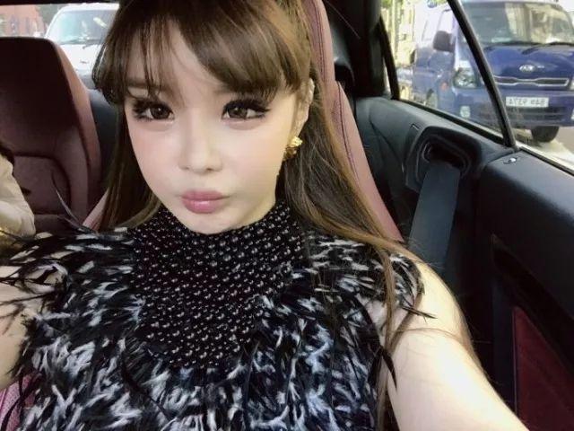 Park Bom bi tung bang chung da dao keo sau khi phu nhan tham my hinh anh