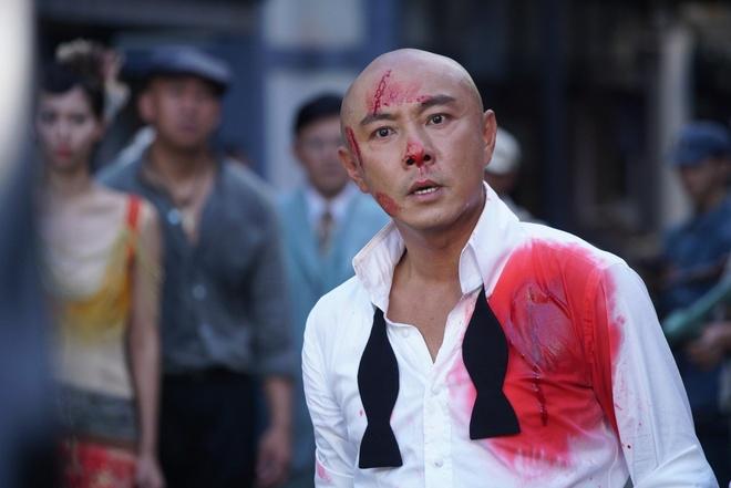 Truong Ve Kien thanh cong sau khi chap nhan ha cat-xe, tro lai voi TVB hinh anh 1