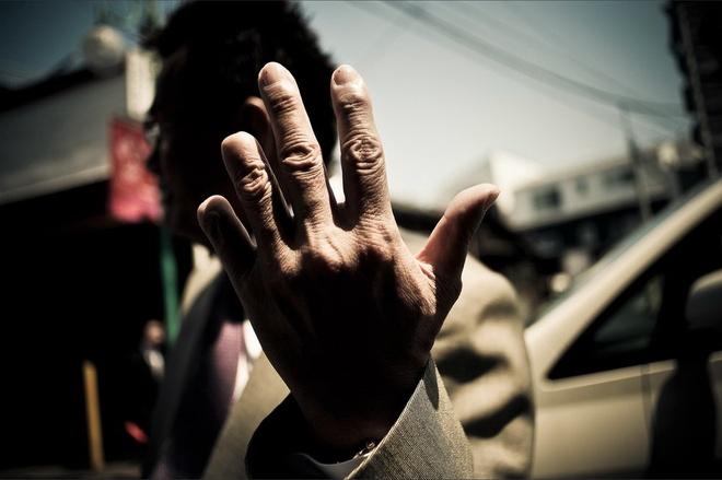Yakuza - bang dang quyen luc nhat Nhat Ban hinh anh 3 Nếu một Yakuza khiến ông chủ của anh ta không hài lòng hoặc thất vọng, anh ta sẽ phải cắt bỏ một đốt ngón tay. Ảnh: Anton Kusters