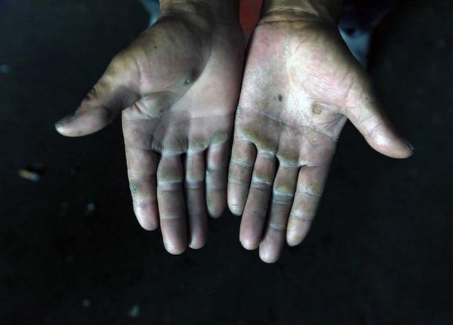Cuoc song khong thit cua gia dinh 9 nguoi o Trung Quoc hinh anh 5 Yang chấp nhận làm nhiều công việc thủ công nặng nhọc như thợ mộc, thợ xây, sửa đường để nuôi sống gia đình.Công việc khiến bàn tay ông chai sạn.