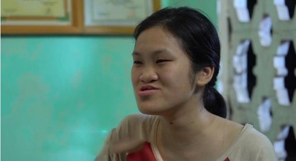 Trang Nhung bị sứt môi bẩm sinh, hở hàm ếch và cảm thấy rất tự ti, không dám đối diện với người lạ.