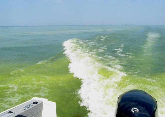 Tao doc no ruc ro tren ho Erie hinh anh 5 Không phải tất cả các loại tảo là hủy diệt, nhưng loài tảo nở rộ trên hồ chủ yếu là microcystis aeruginosa, một loài tảo độc đối với những loài động vật có vú. Microcystis aeruginosa xuất độc tố có màu nâu sậm gọi là microcystin thường giết chết một con chó đang bơi trong vùng nước nhiễm độc tố này và cũng như gây kích ứng da, khó khăn về hô hấp và tiêu hóa nạn ở người.
