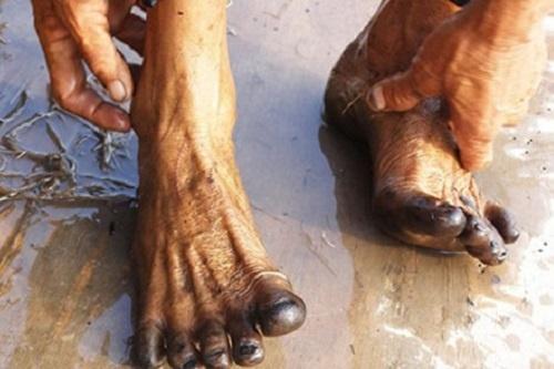 Hien tuong la: Chan den thui sau khi loi ruong hinh anh