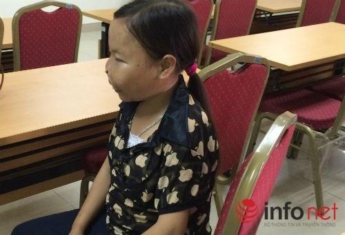 Can benh khien thieu nu mai o trong hinh hai tre em hinh anh 1 Bệnh nhân Phan Thị Vân quê Cao Bằng đã 21 tuổi nhưng trông cô như trẻ con.