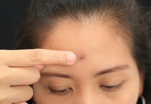Cach nan mun khong de lai seo tham hinh anh 1 1. Quyết định xem có nên nặn mụn Chỉ nên nặn với mụn đầu trắng, thường là có mủ dưới da, nó sẽ dễ dàng nặn cũng như điều trị chăm sóc và cũng ít để lại sẹo.