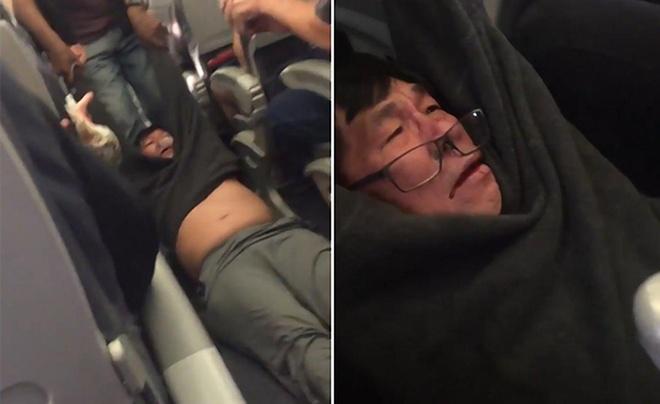United Airlines: Chuyen bay hanh khach bi keo le khong qua cho hinh anh 1