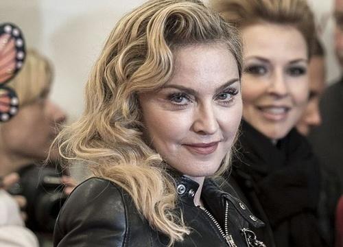 Madonna lo mat sung phu vi tiem botox hinh anh