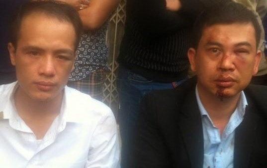 Dai bieu Quoc hoi de nghi khoi to vu an hai luat su bi danh hinh anh 1 Hai luật sư bị đánh , cướp điện thoại.