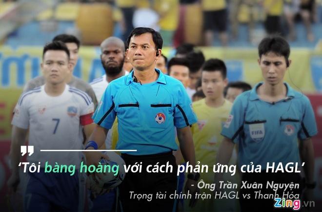 Lam 'tot thi', hang loat trong tai Viet bo V.League sang san phui hinh anh 1