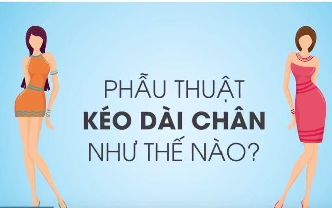 Phau thuat keo dai chan nhu the nao? hinh anh