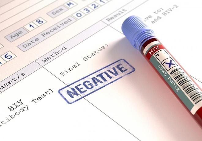Lam gi khi bi phoi nhiem HIV? hinh anh 2
