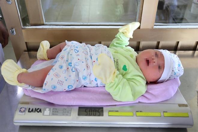 San phu tang 11 kg ca thai ky, sinh con nang 5 kg hinh anh 1