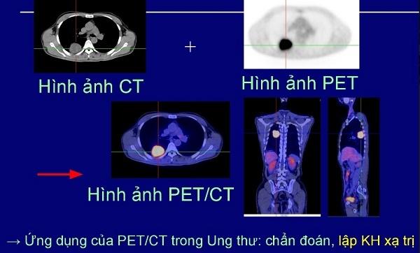 Benh nhan ung thu phoi di can khap co the van chua khoi hinh anh