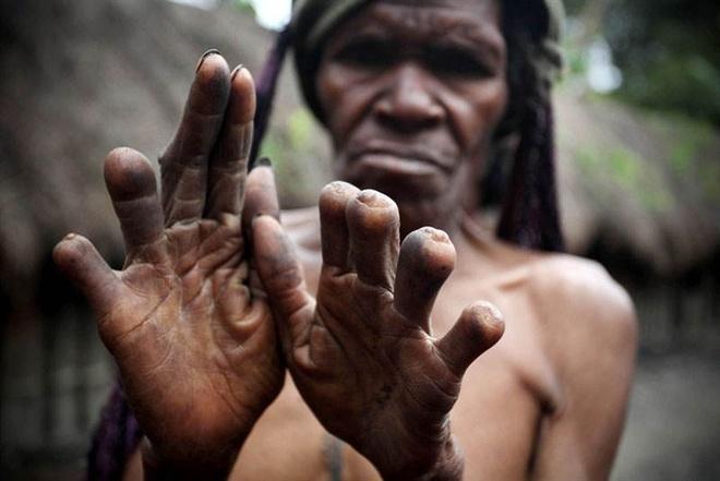 Nguoi Dani o Indonesia cat ngon tay khi nao? hinh anh