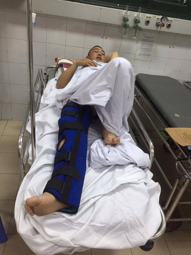 Tai xe taxi tong gay chan CSGT roi bo chay hinh anh 2 rung úy Phạm Đức Ngọc bị vỡ xương đầu gối đang điều trị tại Bệnh viện Việt Đức. Ảnh: Nguyễn Minh.