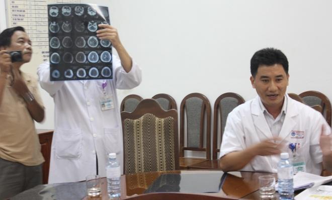 Con gai tu vong o benh vien, gia dinh khieu nai len Bo Y te hinh anh 1 Theo lãnh đạo Bệnh viện Đà Nẵng, Vy nằm trong trường hợp đột quỵ não do xuất huyết, phát hiện chậm nên không cứu chữa được.