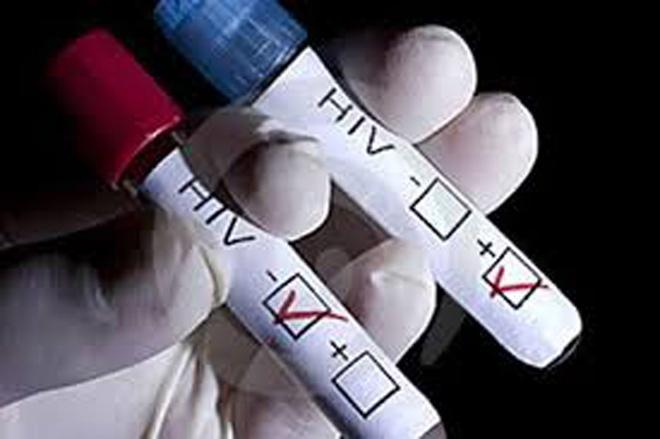 70% so nguoi nhiem HIV trong do tuoi con rat tre hinh anh