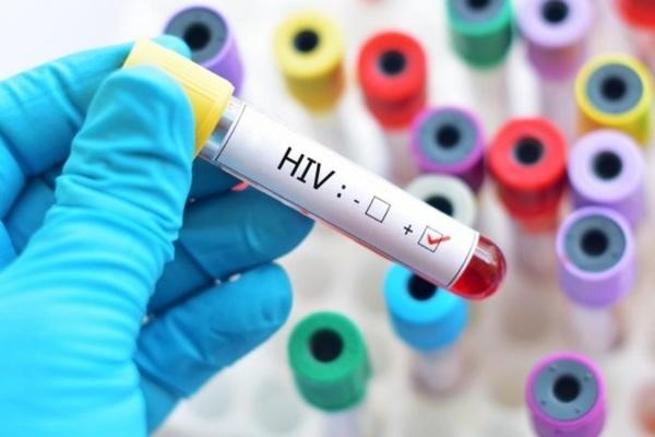Chung ta co the chua duoc HIV vao nam 2020? hinh anh