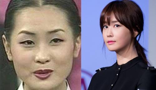 Lee Da Hee dien do do di chung phau thuat tham my? hinh anh 6