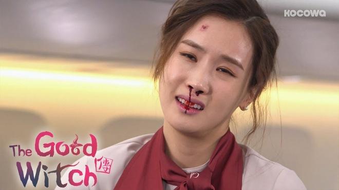 Lee Da Hee dien do do di chung phau thuat tham my? hinh anh 8